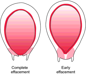 effacement in pregnancy